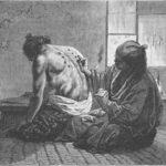 ancient acupuncture