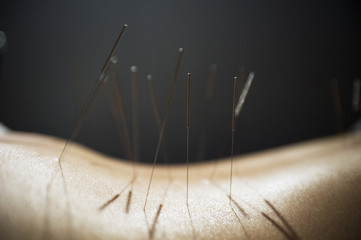 Acupuncture for Anxiety | Acupuncture Near Me ...